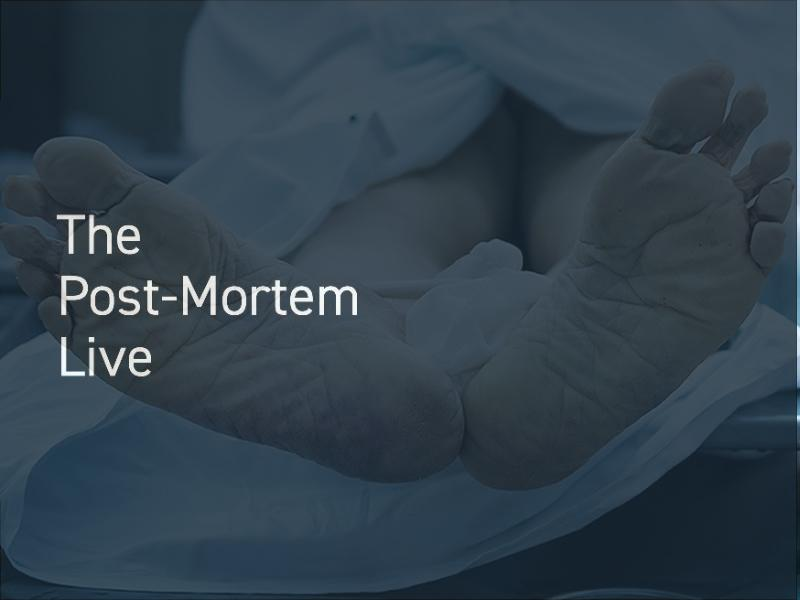The Post-Mortem Live